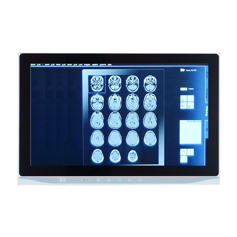 Máy tính màn hình cảm ứng 15.6 inch cho y tế (Medical PC) Axiomtek MPC153-834